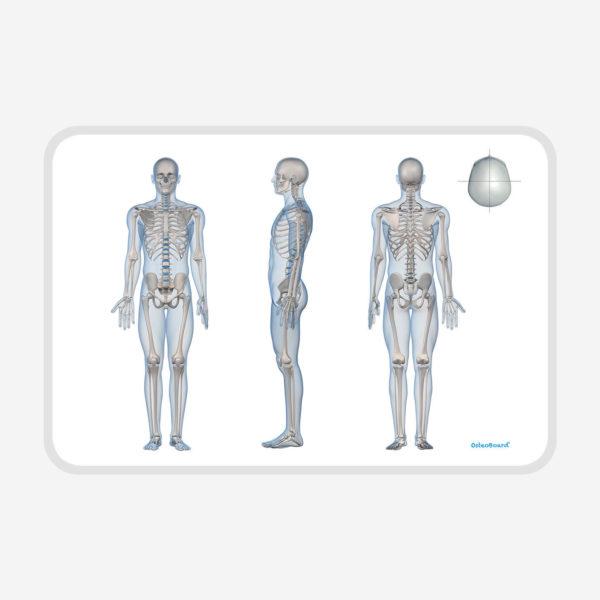 OsteoBoard-Handy