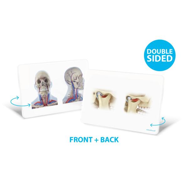 OsteoBoard TMJ